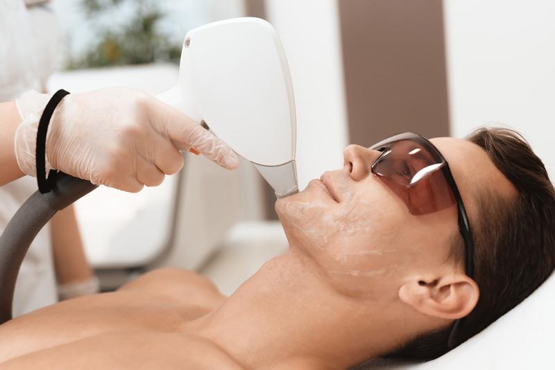 vax hårborttagning män